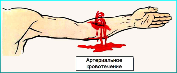http://03chel.ru/images/firstaidrazlkrov/1.png